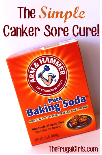 Canker Sore Cure | 25+ Ways To Use Baking Soda